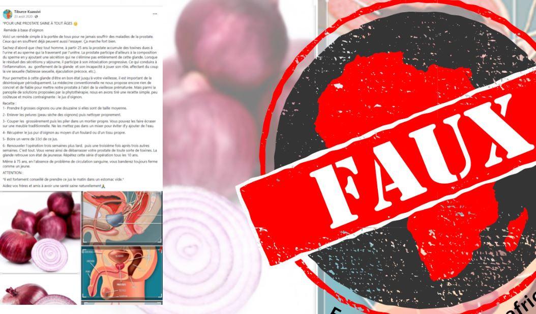 Non, consommer de l'oignon n'aide pas à maintenir une prostate saine à tout âge